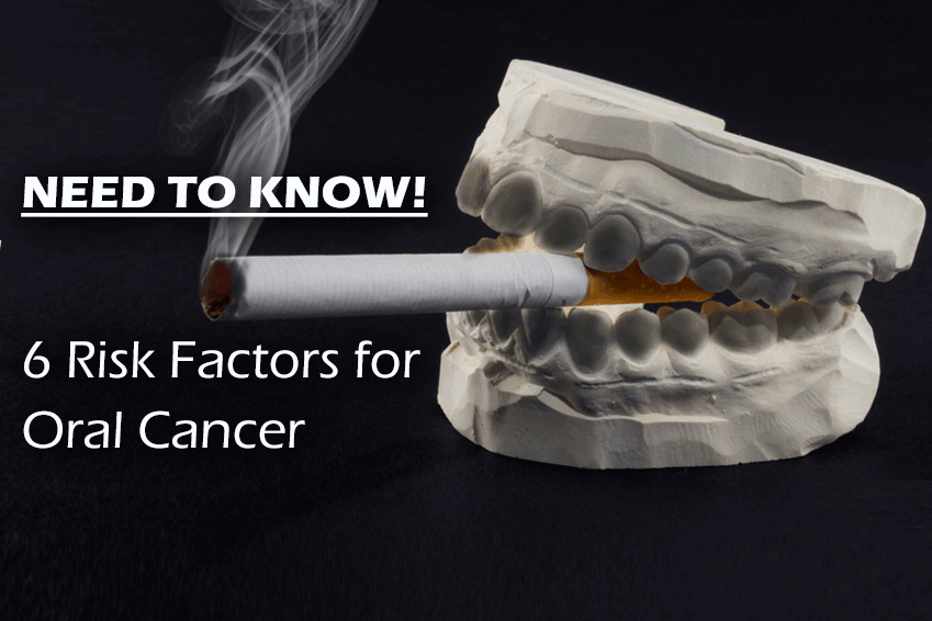 Top Oral Cancer Risks